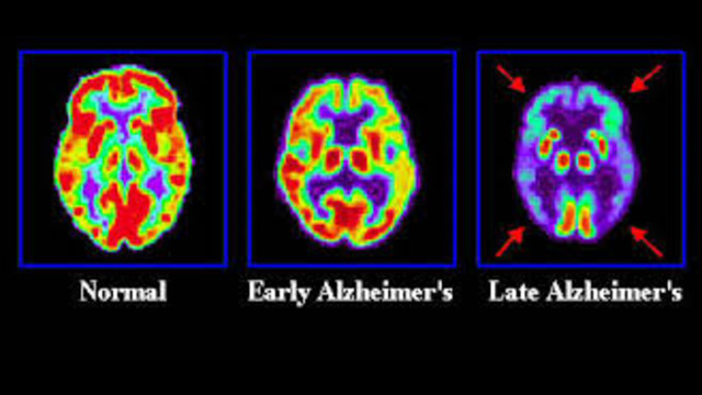 alzheimers disease 5 essay Free essay: what is alzheimer's disease alzheimer's disease is a progressive, degenerative neurological disorder that leads to impairments in memory.