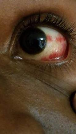 In Tears as his eye welled and the broken blood vessels in his eye made it painful to see.